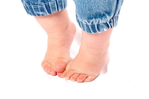 micoza între tratamentul degetelor de la picioare