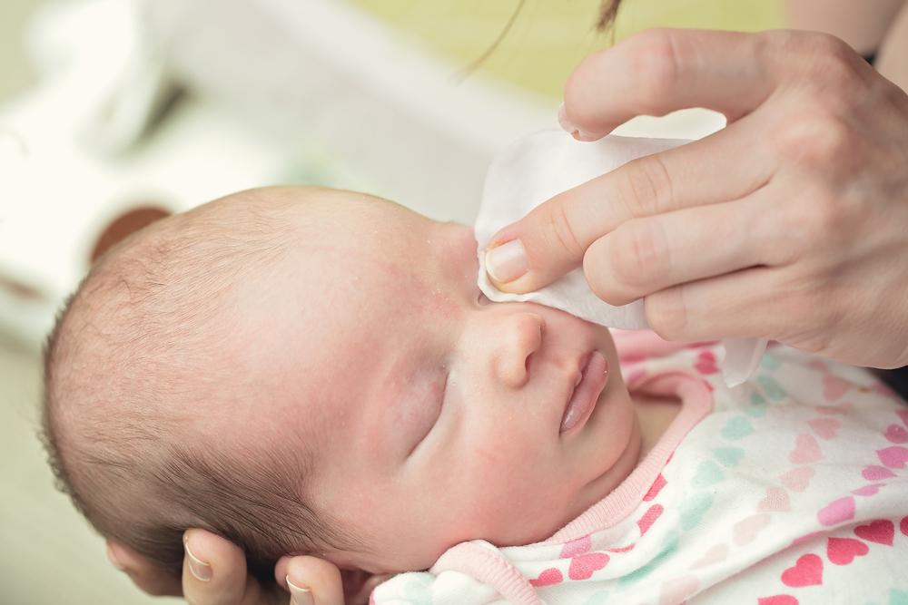 Conjunctivita și tratamentul acesteia la sugari Pediatrie oftalmologie soiuri de conjunctivită