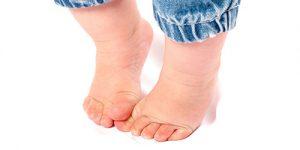 ciuperca-piciorului-la-copii.jpg