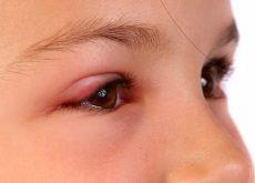 cum-protejam-copiii-de-alergiile-oculare.jpg