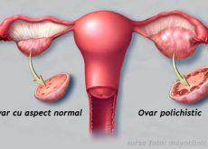 sindromul-ovarului-polichistic-simptome-diagnostic-si-tratament.jpg