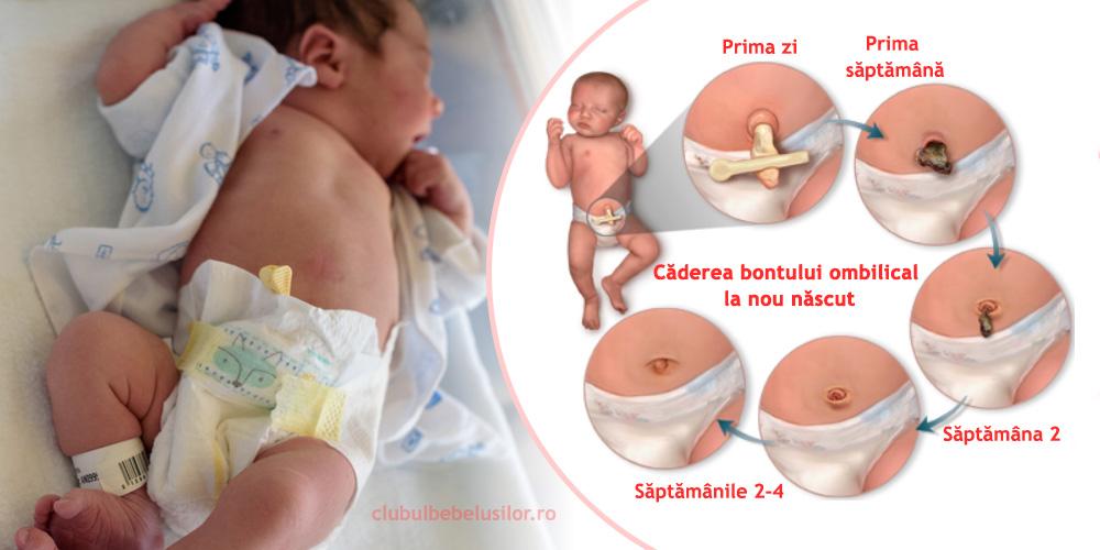 bont-ombilical-nou-nascut