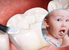 sigilarea-dintilor-la-copii-cum-se-face-riscuri