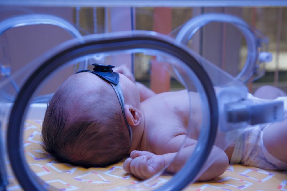 icter nou nascut piele galbena fototerapie spital
