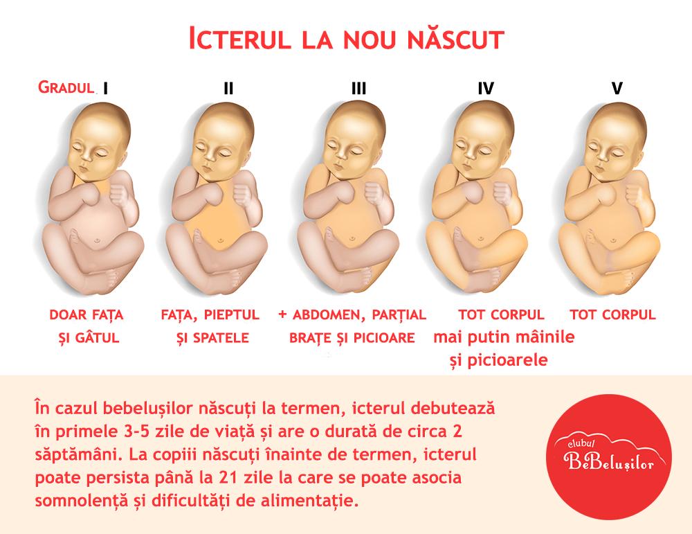 icterul-la-nou-nascut-grade-de-afectare