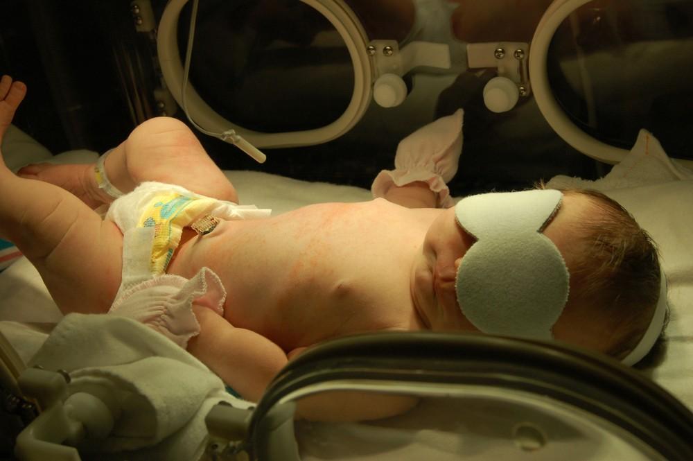 copil nascut dupa termen postmaturul